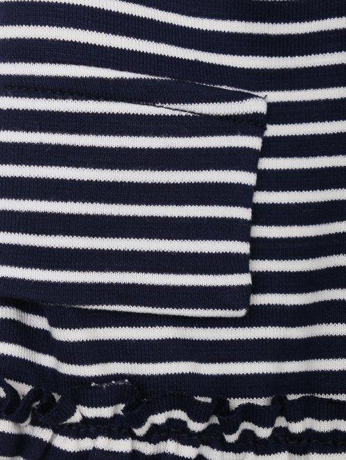 Платье трикотажное на пуговицах - Деталь1